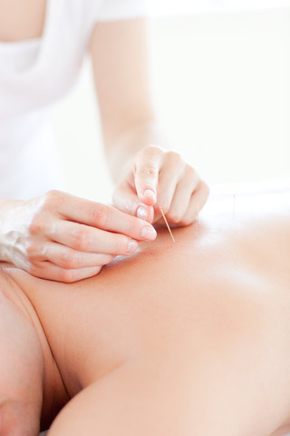 Broadgate Spine & Joint Clinic Acupuncture Services