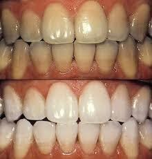 Life-Like Cosmetic Solutions is dedicated to providing quality tooth bleaching products for dentists.