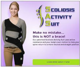 how to fix a mild case of scoliosis