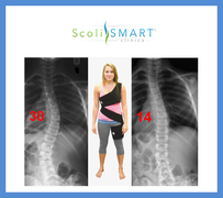 The Scoliosis Activity Suit used in ScoliSMART Clinics