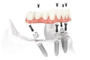Full Teeth Replacement