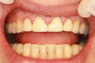 13 Things to Know About Permanent Teeth Whitening Procedures in Aurora, Co. at Accord Dental