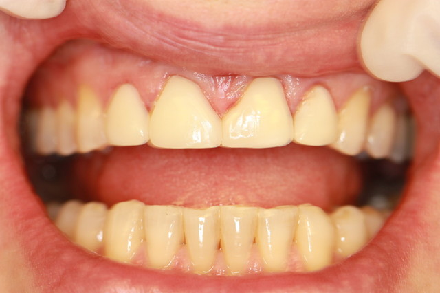 Porcelain Veneers at Accord Dental in Aurora CO