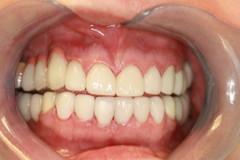 Lumineers at Accord Dental in Aurora, CO
