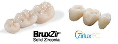 BruxZir and Zirlux Crowns