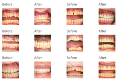 Before and After Images From Dental Procedures at Accord Dental<br />