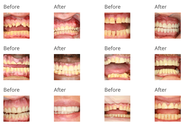 before and after images from dental procedures at accord