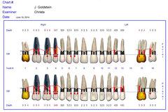 Pretreatment: June 2014 periodontal status, upper arch