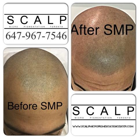 Scalp Micropigmentation Center Reviews of SMP by Tino Barbone.  www.scalpmicropigmentationcenter.com