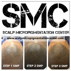 Scalp Micropigmentation Center In Toronto, Ontario Offering The Best Scalp Micropigmentation Treatments in Canada