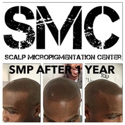 Scalp Micropigmentation Results after 1 Year. Visit The Scalp Micropigmentation Center for more information and reviews.