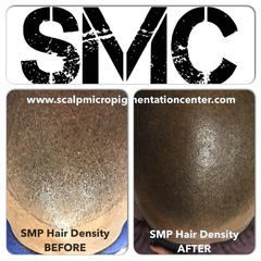 The Scalp Micropigmentation Center Explains The Difference Between Scalp Micropigmentation (SMP) and Classic Body Tattoo…