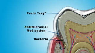 Addressing Antibiotic Resistance in Periodontal Treatment