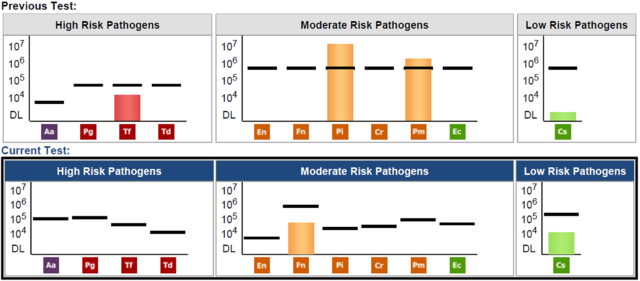 Perio Pathogen Test (Before / After Comparison)