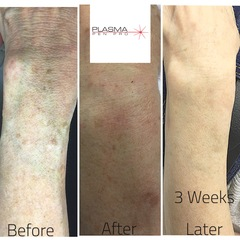 Plasma Pen Pro (PPP) Are Leading The Industry In Plasma Skin Treatments Training and Certification