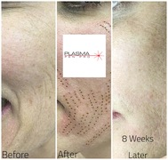 Plasma Pen Skin Tightening Treatment using Plasma Pen Pro. Full Face Lift Using Plasma Pen Treatment.