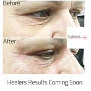 Before and After Plasma Pen Pro student working on Skin Tightening on crows feet and upper eyelid lift using PPP.