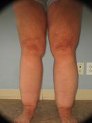 Patient with Lipedema Stage 2, Type 3. This is an example of lipedema which causes abnormal and disproportionate fat accumulation on the legs of  affected women.