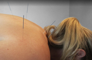River City Wellness Offers New Patients Acupuncture Discount in Celebration of the Chinese New Year