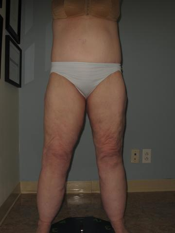 Lipedema with disproportionate accumulation of fat on legs.