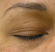 Puffiness of the Eyes (After 4 Treatments)