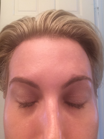Insider Beauty Buzz photo after Xeomin treatment by Dr. Janelle Vega of Mayoral Dermatology in Coral Gables, Florida.