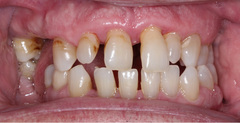 Patient Image - after 2 weeks of Perio Protect Treatment.