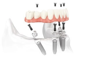 Winter Park Oral & Maxillofacial Surgery & Dental Implant Center Offers the All-on-4® Treatment Concept