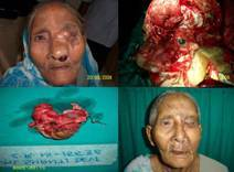 Skull Base & Craniofacial Surgeries at Dharamshila Cancer Hospital in India