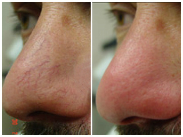 Laser treatments can be very effective for removing spider veins from the face.<br />