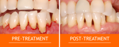 Pre-Treatment and Post-Treatment Images
