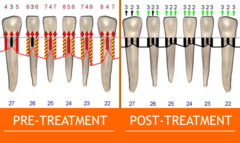 Pre-Treatment and Post-Treatment Dental Probings