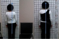 Postural changes from the Scoliosis Activity Suit