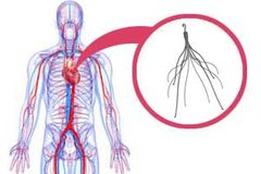 IVC Filter Lawsuits Claim Cooks Filters Could Break and Migrate Contact www.southernmedlaw.com