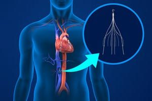 IVC Filter Lawsuits May Cause Pulmonary Embolism, Inferior and Vena Cava Perforations www.southernmedlaw.com