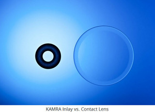 Boling Vision Center is the FIRST practice in Indiana to bring the KAMRA inlay procedure to the community
