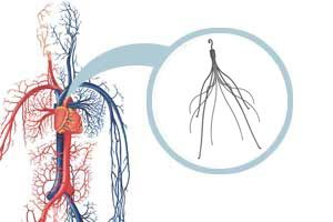 IVC Pulmonary Embolism and Other Dangers Side-Effects Alleged In IVC Filter Lawsuits