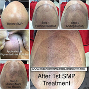Scalp Micropigmentation Center Reviews of SMP by Tino Barbone.  www.scalpmicropigmentationcenter.com