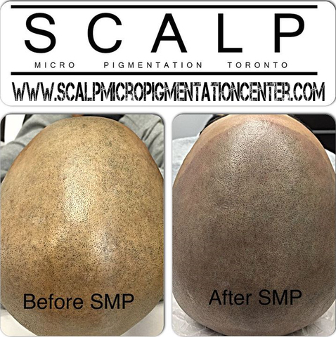 Scalp Micropigmentation Results by Tino Barbone at The Scalp Micropigmentation Center of Toronto.