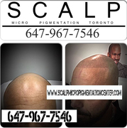 Scalp Pigmentation Results by Tino Barbone at The Scalp Micropigmentation Center of Toronto.