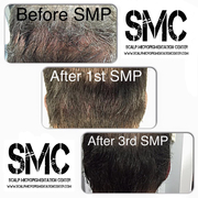Scar Camouflage Using SMP at The Scalp Micropigmentation Center of Toronto by Tino Barbone