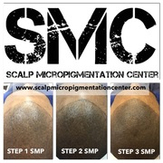 Scalp Micropigmentation Center Results and Reviews of SMP Treatment in Toronto