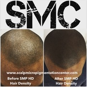 SMP Hair Density Results by Tino Barbone at The Scalp Micropigmentation Center of Toronto.
