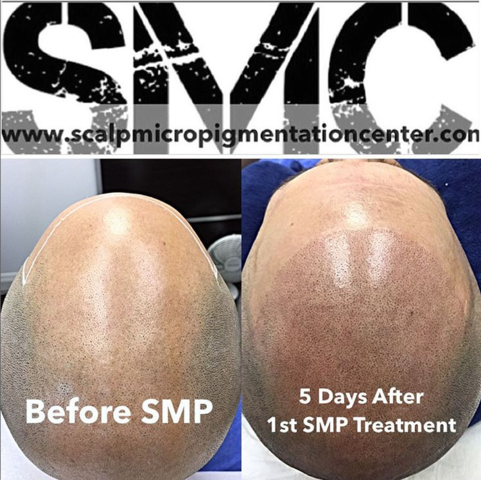 Visit the Best SMP Clinic in Toronto by Tino Barbone