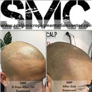 Scalp Micropigmentation Treatment By Tino Barbone at SMC Toronto.