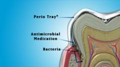 Perio Tray by Perio Protect, LLC