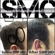 Scalp Micropigmentation Hair Density Training and Certification in Canada and the USA