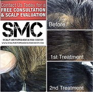 Scalp Tattoo for women with thinning or balding hair. Hair loss treatment for women with thinning or balding hair.