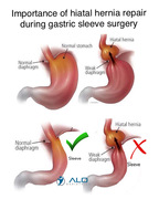 Hietal Hernia Repair during Bariatric Surgery by ALO Bariatrics