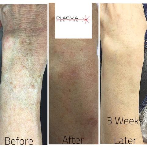 Plasma Pen Pro Skin Rejuvenation Treatment. Plasma Skin Tightening Treatment at Plasma Pen Pro.